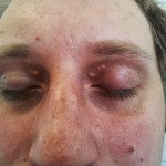 Xanthelasma palpebrarum 01