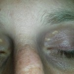 Xanthelasma palpebrarum 02