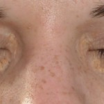 Xanthelasma palpebrarum 04