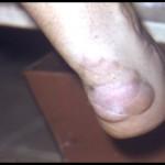 Xanthomas on Achilles tendon 02