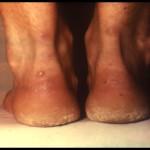 Xanthomas on Achilles tendon 03